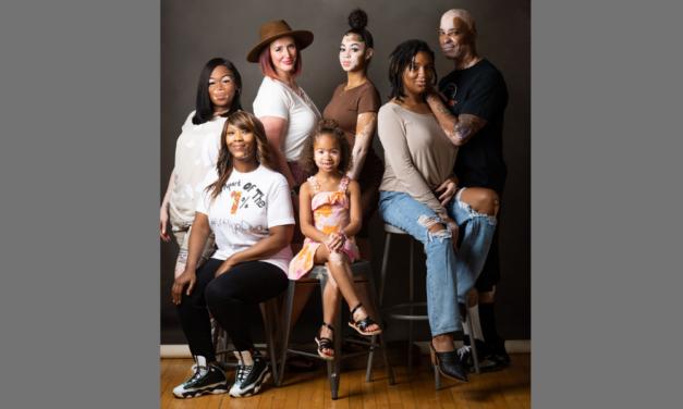 Unique photoshoot celebrates people with vitiligo